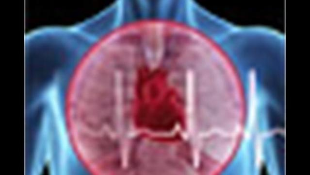 Scientists Explain Stress and Heart Attack Link