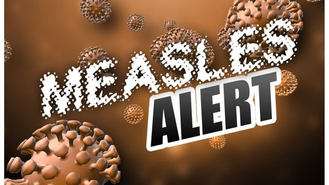 Confirmed case of measles at Detroit Metro airport